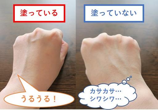 リペシカホワイトを左右の手で比較した写真